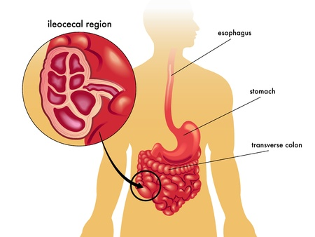 colon: colitis