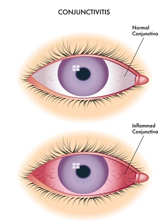 pathology: conjunctivitis Illustration