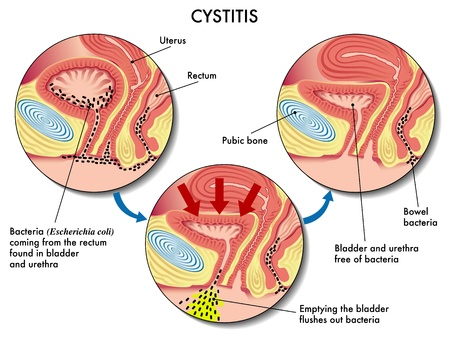 mucosa: Cystitis Illustration