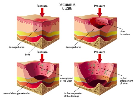 friction: decubitus ulcer