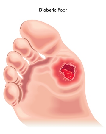 ulceration: Diabetic foot