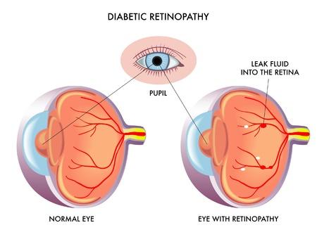 mellitus: Retinopatia diabetica