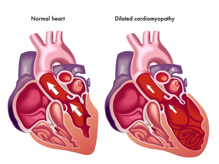 myocardium: Cardiomiopatia dilatativa Vettoriali