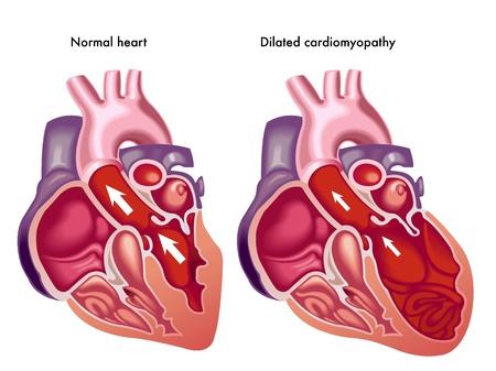 radiography: Dilated cardiomyopathy