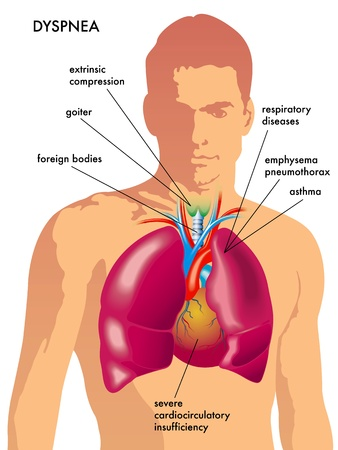 respiration: dyspnea Illustration