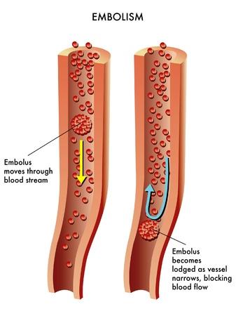 hipertension: Embolia