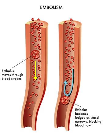 thrombus: Embolism Illustration