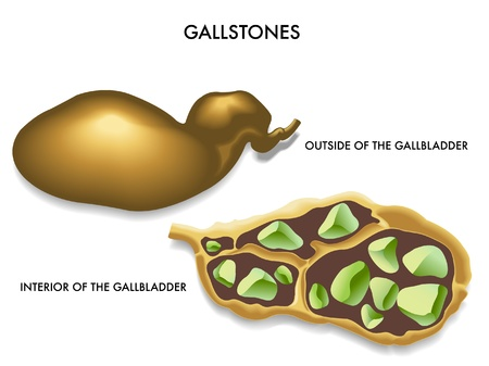 gallstones Stock Vector - 14017844