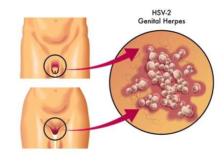 the lesions: genital herpes