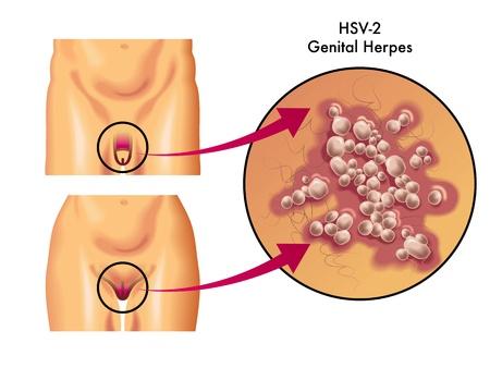 scrotum: herpes genital
