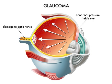 cornea: Glaucoma Illustration