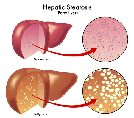 liver cells: Hepatic steatosis