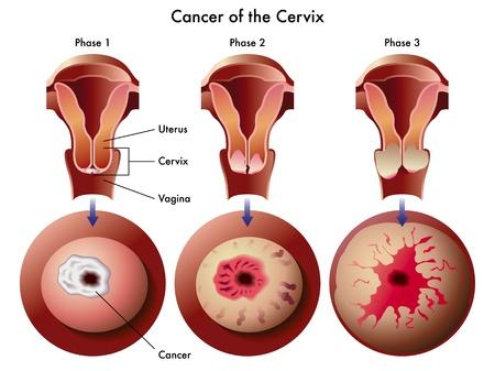 cervical cancer Stock Vector - 14557743