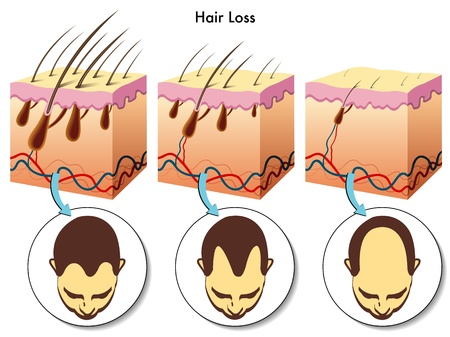 hair loss Ilustrace