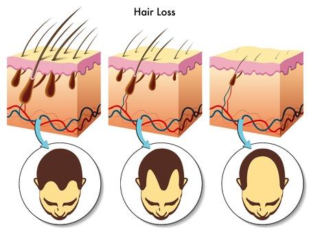calvicie: la pérdida de cabello Vectores