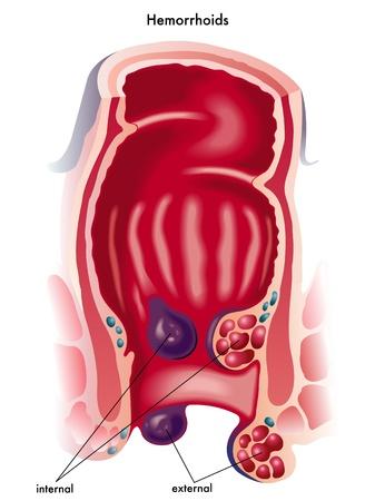 hemorragias: hemorroides Vectores