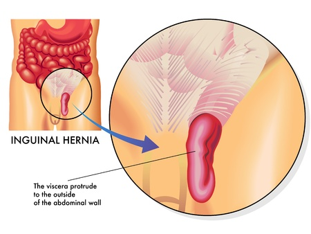 orifice: inguinal hernia