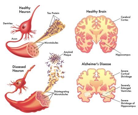 Alzheimer Stock Vector - 15339830