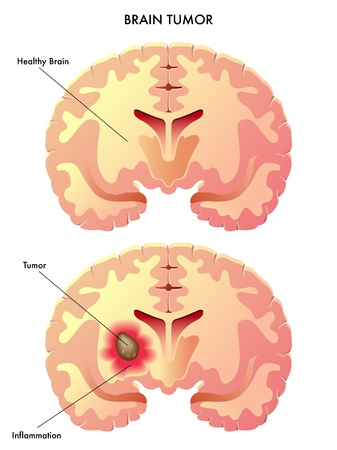 척수: 뇌종양 일러스트