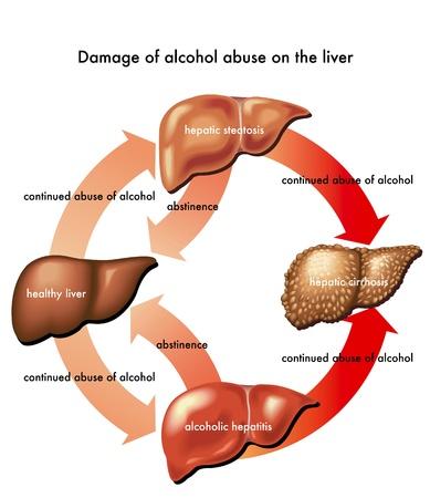 alcoholismo: hígado y alcohol Vectores