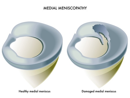 medial meniscopathy Vector