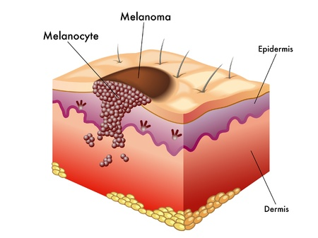 metastasis: Melanoma Illustration