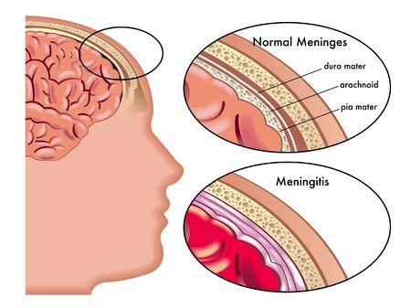 Meningitis Stock Vector - 15472531