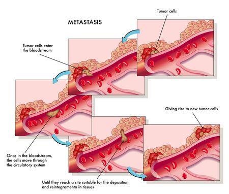 cancer cell: metastasis