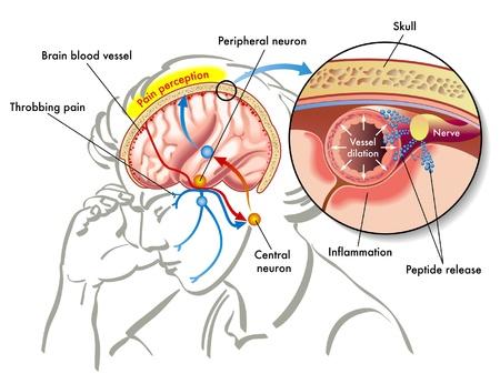 cerebral: migraine