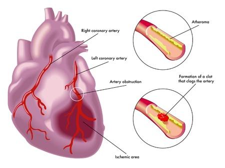 hipertension: El infarto de miocardio