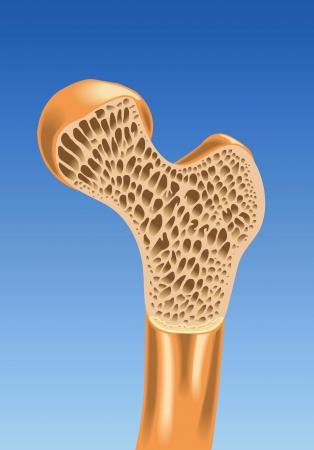 osteoporoza Ilustracje wektorowe