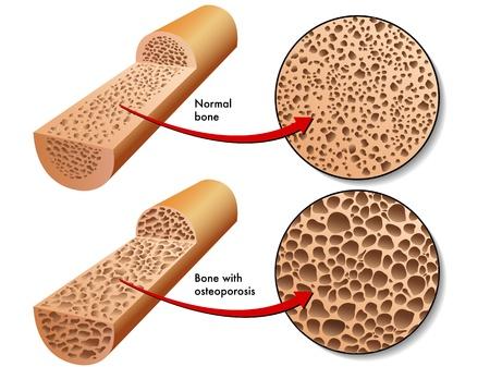 hormonen: osteoporose