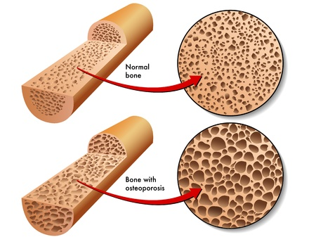 hormonas: osteoporosis