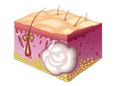 subcutaneous: sebaceous cyst Illustration