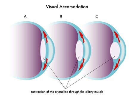 hyperopia: visual accomodation