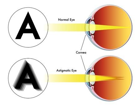 diopter: astigmatismo Vectores