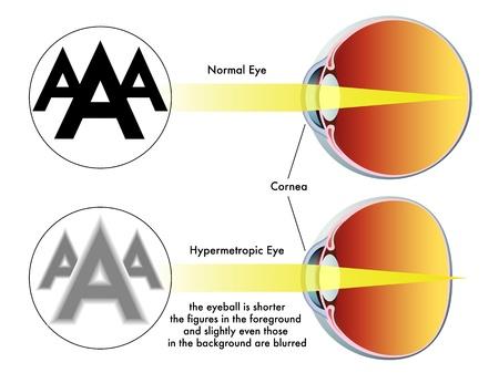 cornea: ipermetropia Vettoriali