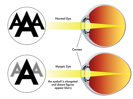 cornea: myopia Illustration