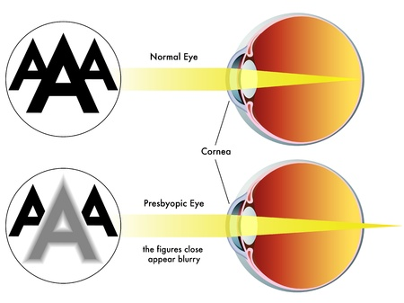 refractive: presbyopia