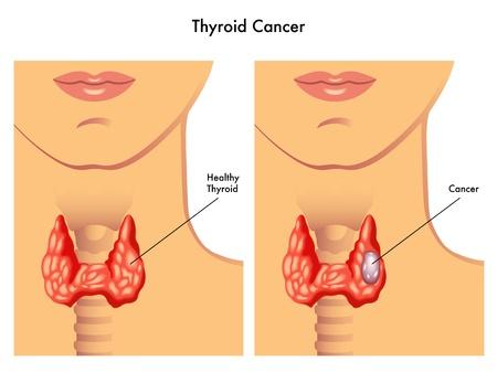 cancer de la thyroïde Vecteurs