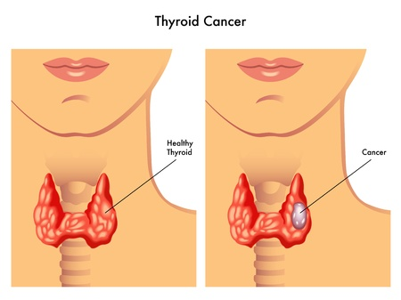 thyroid: thyroid cancer