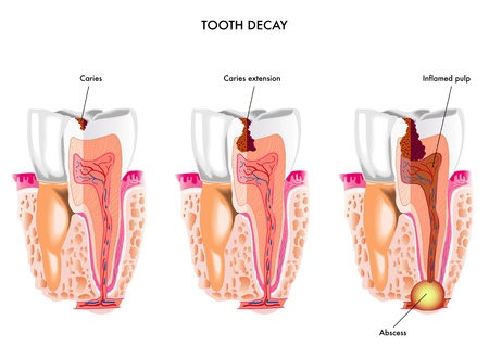la carie dentaire Vecteurs