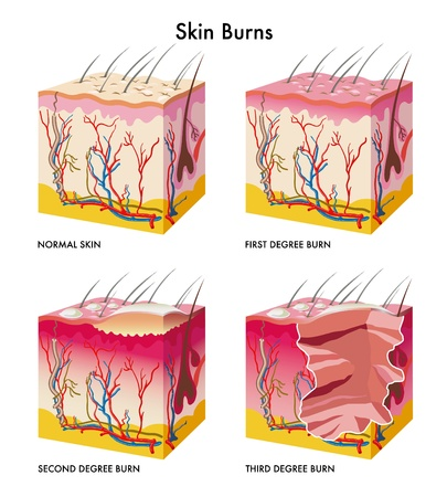 sterilization: skin burns Illustration