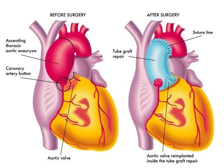 rosnąco: tętniak aorty piersiowej