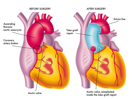 thoracic aortic aneurysm Vector