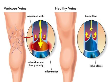 blood flow: vene varicose