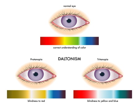 contact lens: daltonism Illustration