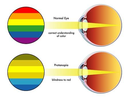 visual perception: protanopia