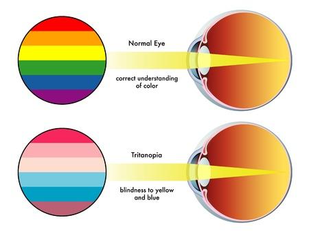 visual perception: tritanopia