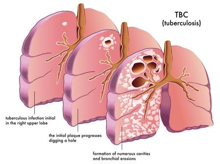 bacteria antibiotic: tuberculosis